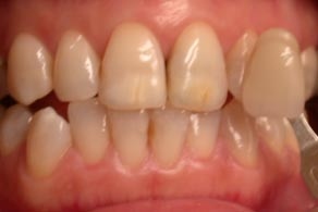 harley street whitening before