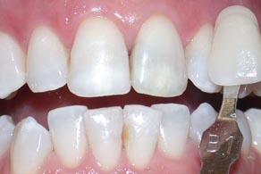harley street whitening after