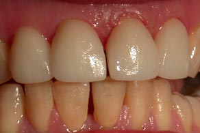 harley street veneers after
