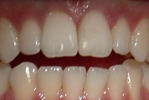 harley street white fillings after